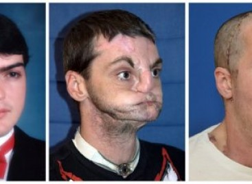 US man gets 'most extensive' face transplant ever