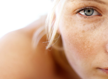 Top Ten Treatments for Sun Spot Removal