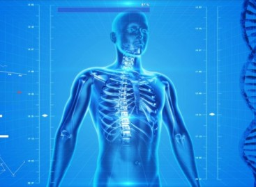 What are X-Rays?
